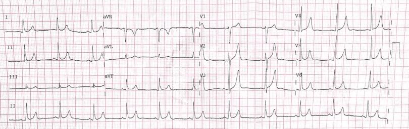 hipertónia tünetei gyermekeknél magas vérnyomás vagy mikrotörés