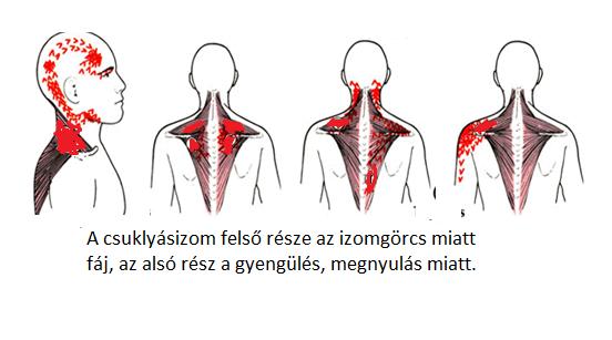 Fájdalom a fej hátsó részén - mit tegyen - Szklerózis