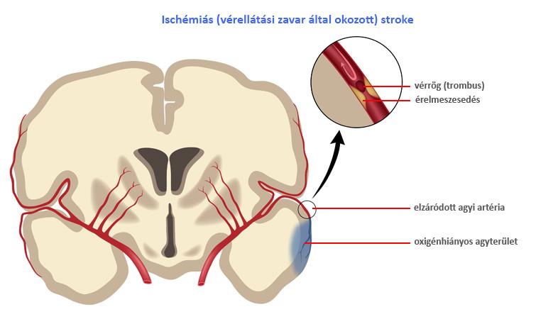 iszkémiás stroke magas vérnyomással hány fokú kockázata van a magas vérnyomásnak