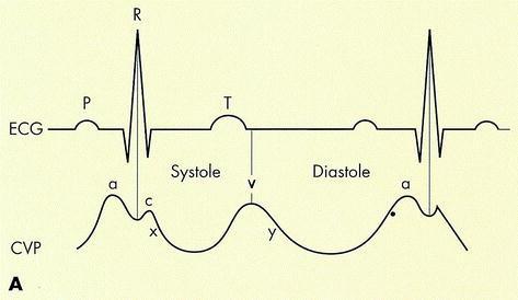 EKG hipertónia feltárására)