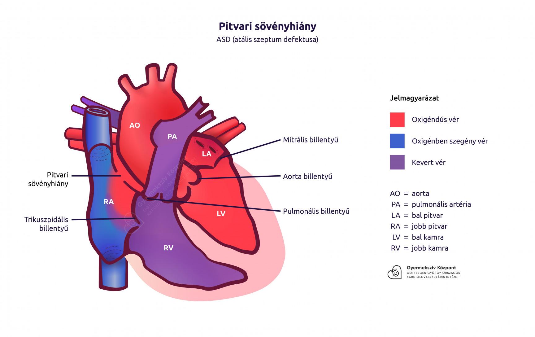 A szívfejlődési rendellenességekről