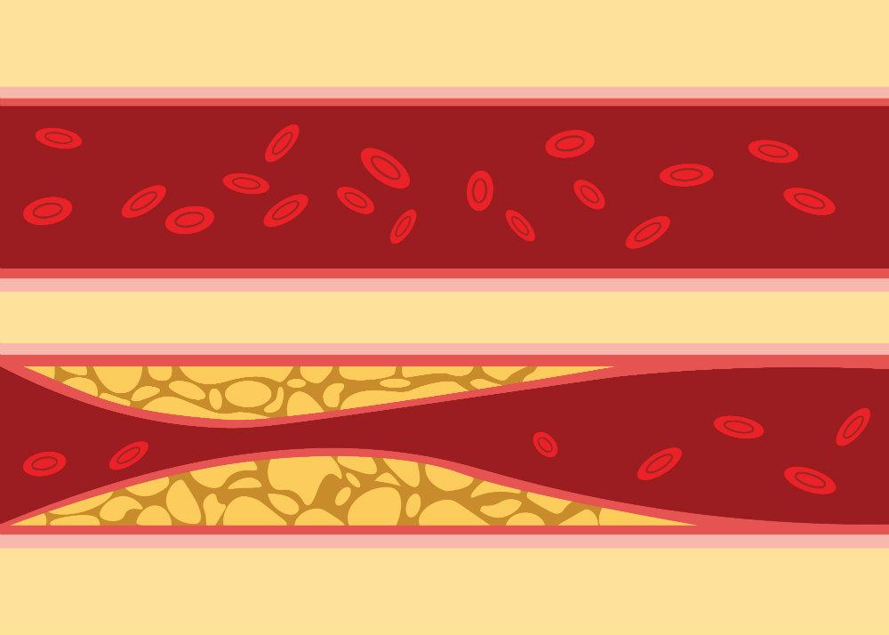 2 a magas vérnyomás egy szakasza
