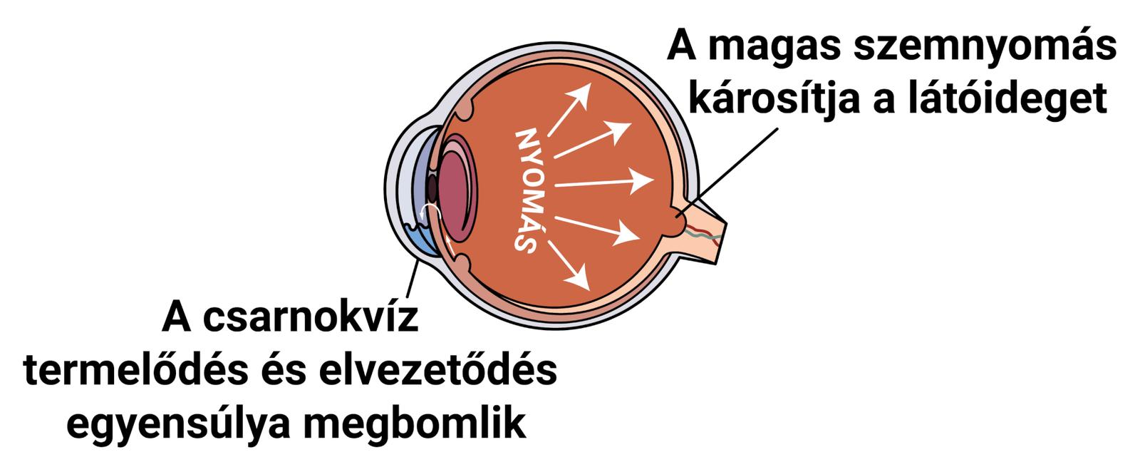 Glaukóma (zöld hályog) tünetei és kezelése - HáziPatika