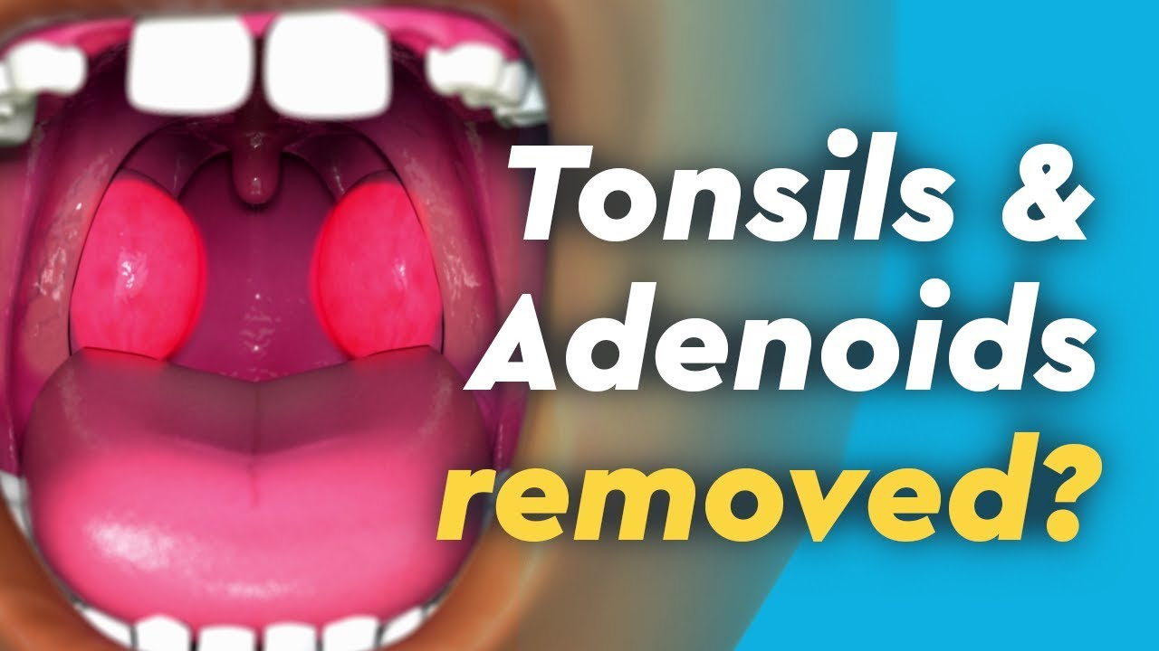 krónikus tonsillitis magas vérnyomás)