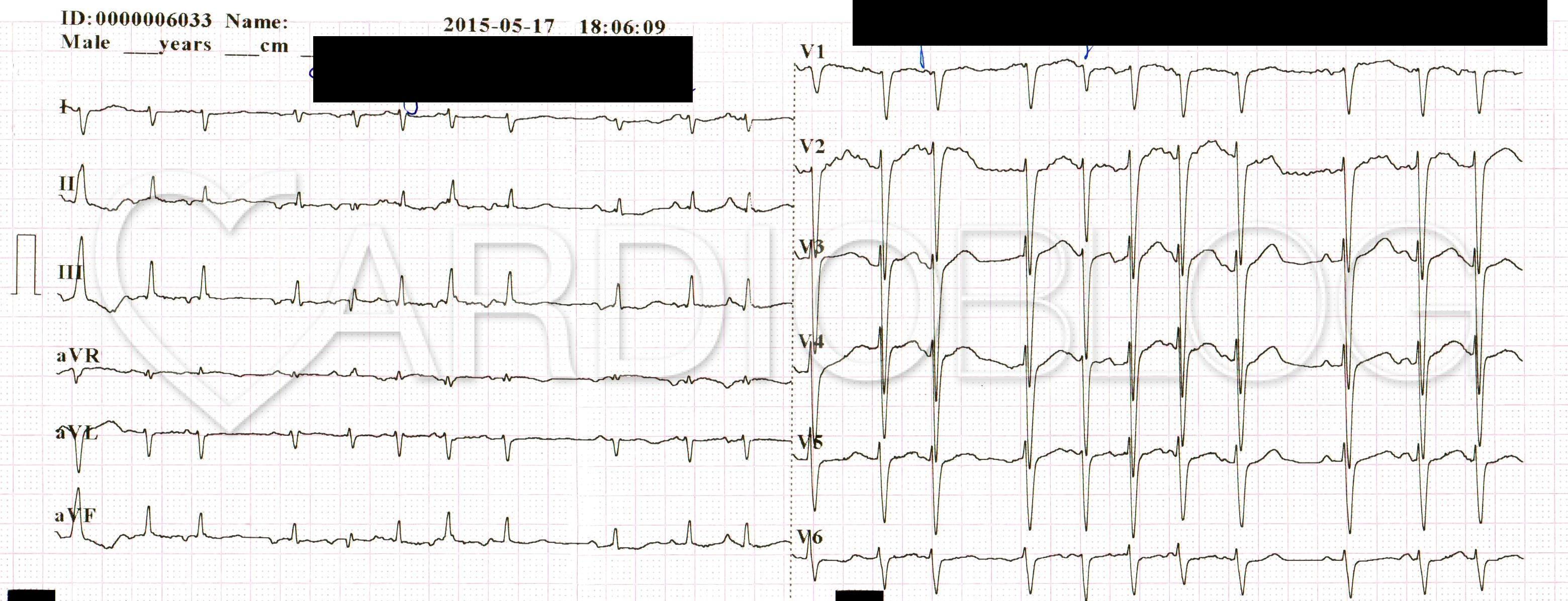 Mi a szív sinus ritmusa?