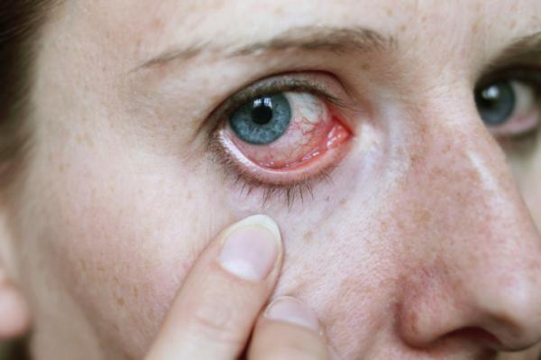 magas vérnyomás a szemekben