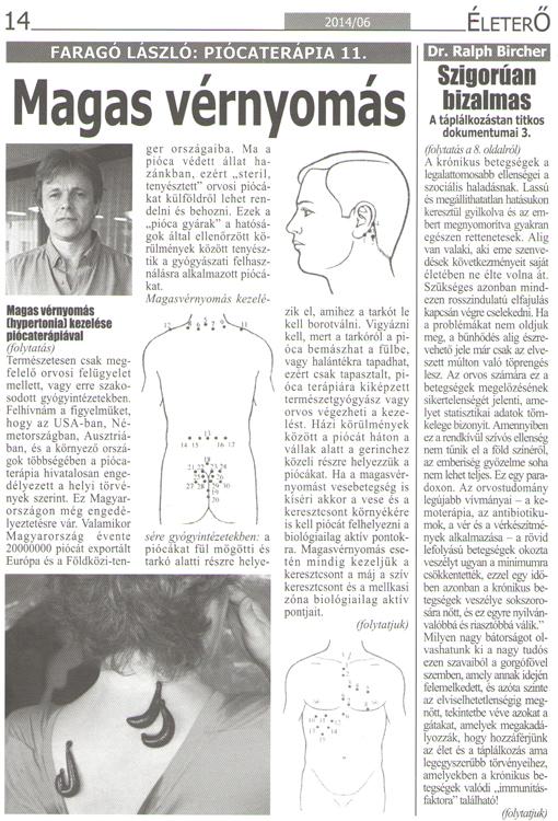 hirudoterápia ahová a piócákat a magas vérnyomás miatt kell elhelyezni)