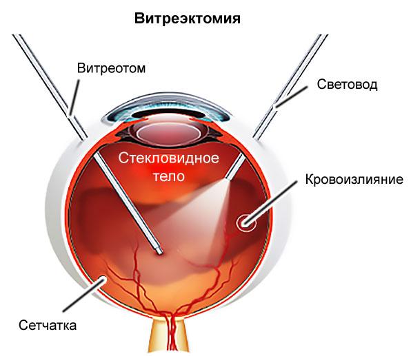 A nesterov dohányzásról való leszokás minden módja, A szem fundus és patológiája