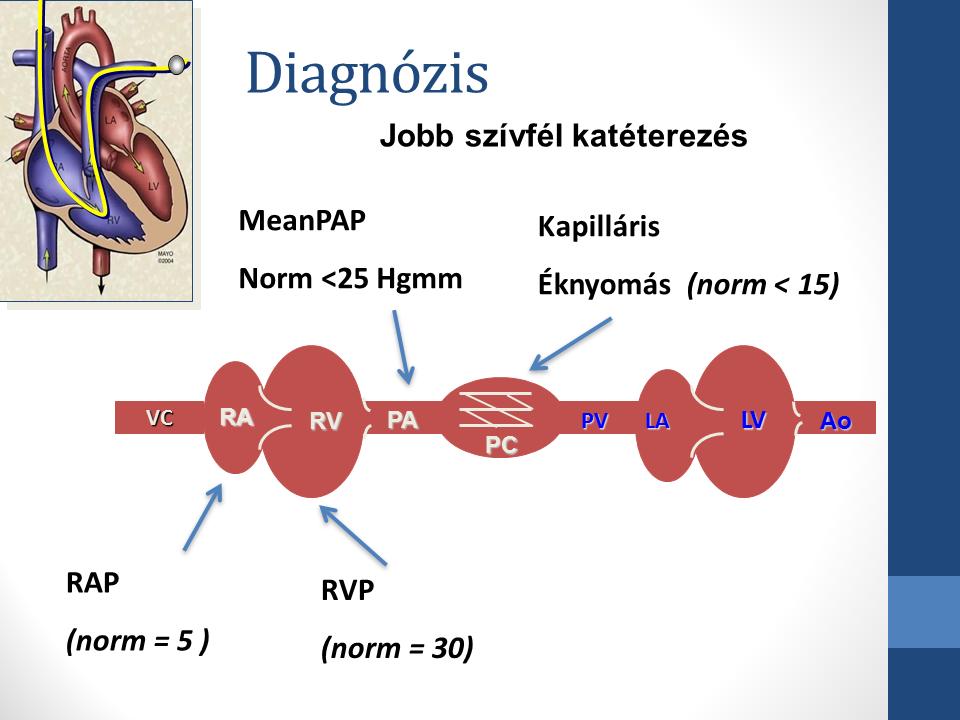 Pulmonális artériás hipertónia