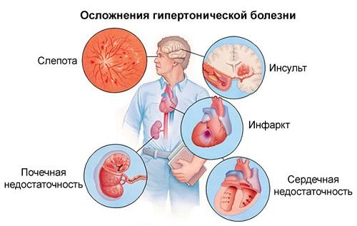 magas vérnyomás 2 fok 4 fok kockázat