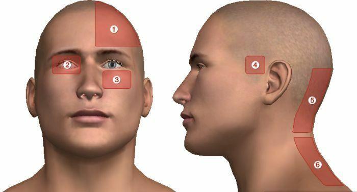 magas vérnyomás fejfájás okozza