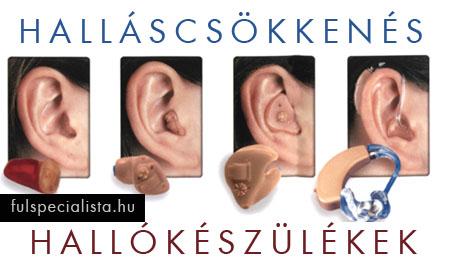 zaj a fülben magas vérnyomás esetén hogyan lehet gyógyszer nélkül megszabadulni a magas vérnyomástól