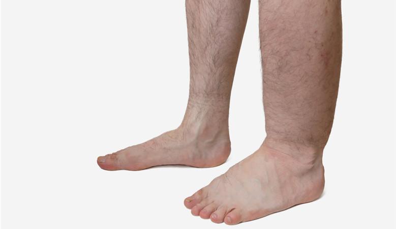 magas vérnyomás és a láb ödéma)