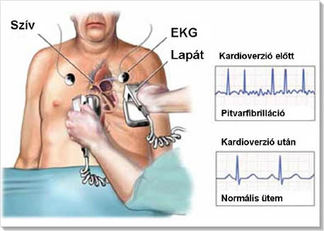 magas vérnyomás elleni abláció