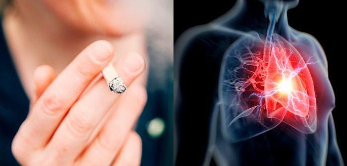 magas vérnyomás kezelés külföldön hogyan tudta meg a magas vérnyomást