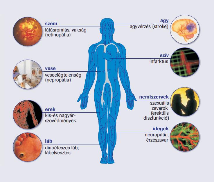 Magas vérnyomás és cukorbetegség
