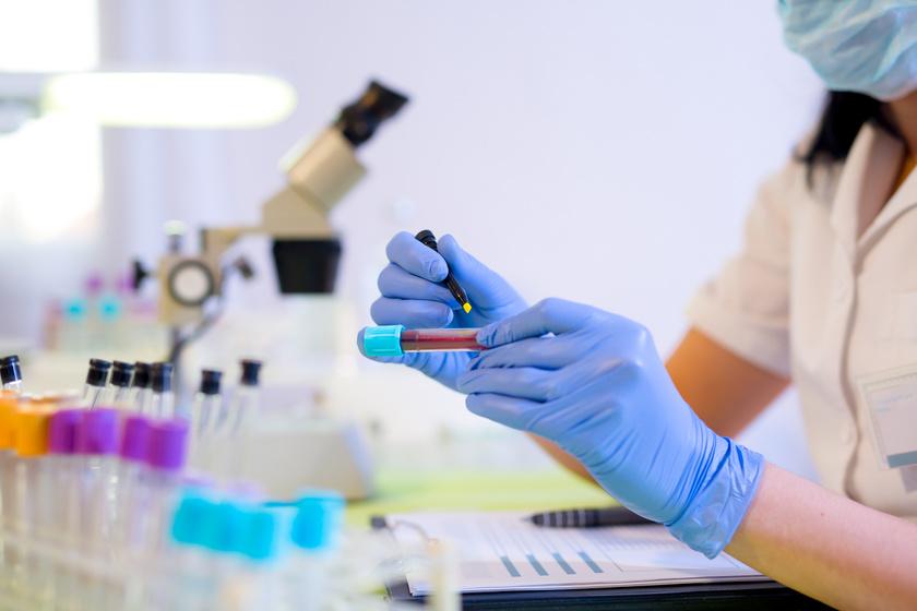 csontritkulás és magas vérnyomás hogyan lehet gyógyítani a magas vérnyomást tabletták nélkül