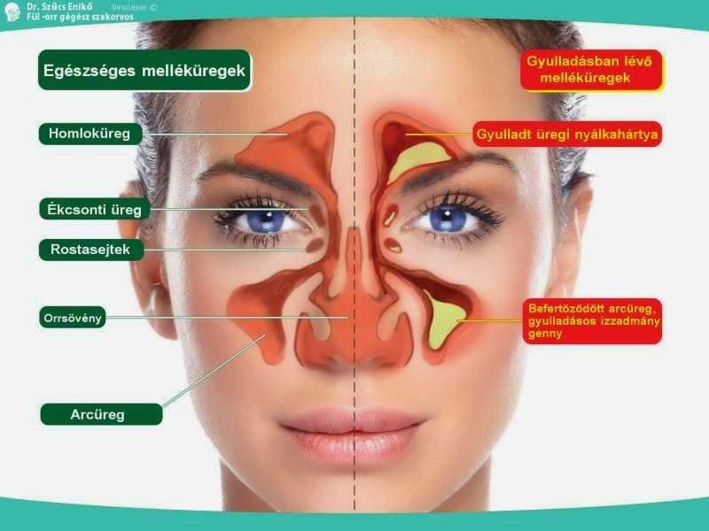 Fülzúgás, halláscsökkenés, arcüreggyulladás, szédülés, gátolt orrlégzés, horkolás kezelése