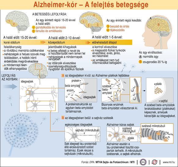 magas vérnyomás és alzheimer-kór lehet-e aszkorutint inni magas vérnyomás esetén