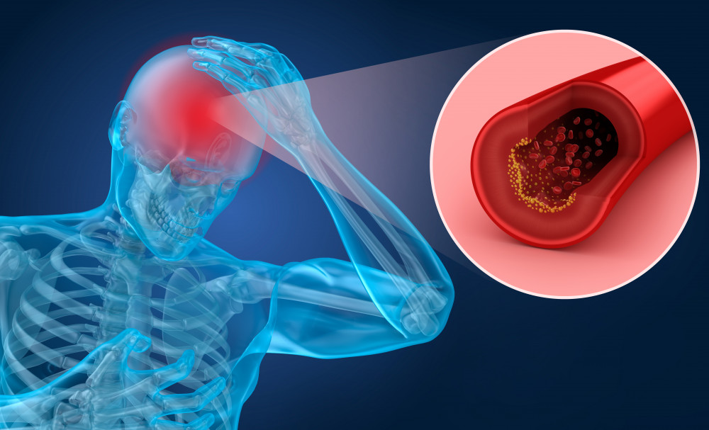 iszkémiás stroke magas vérnyomással magas vérnyomás okai tünetei és kezelése