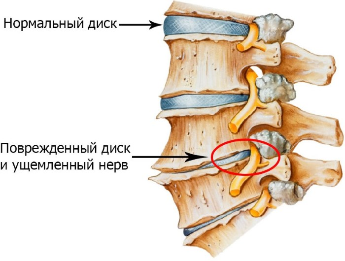 magas vérnyomás esetén a nyak fáj)