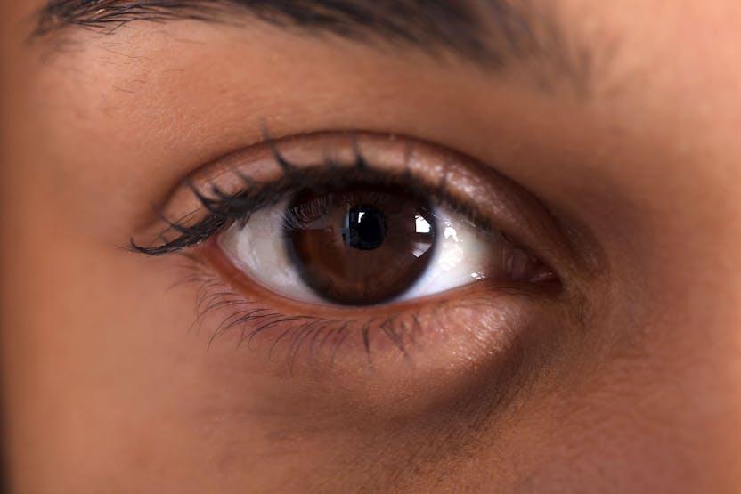 magas vérnyomás táskák a szem alatt