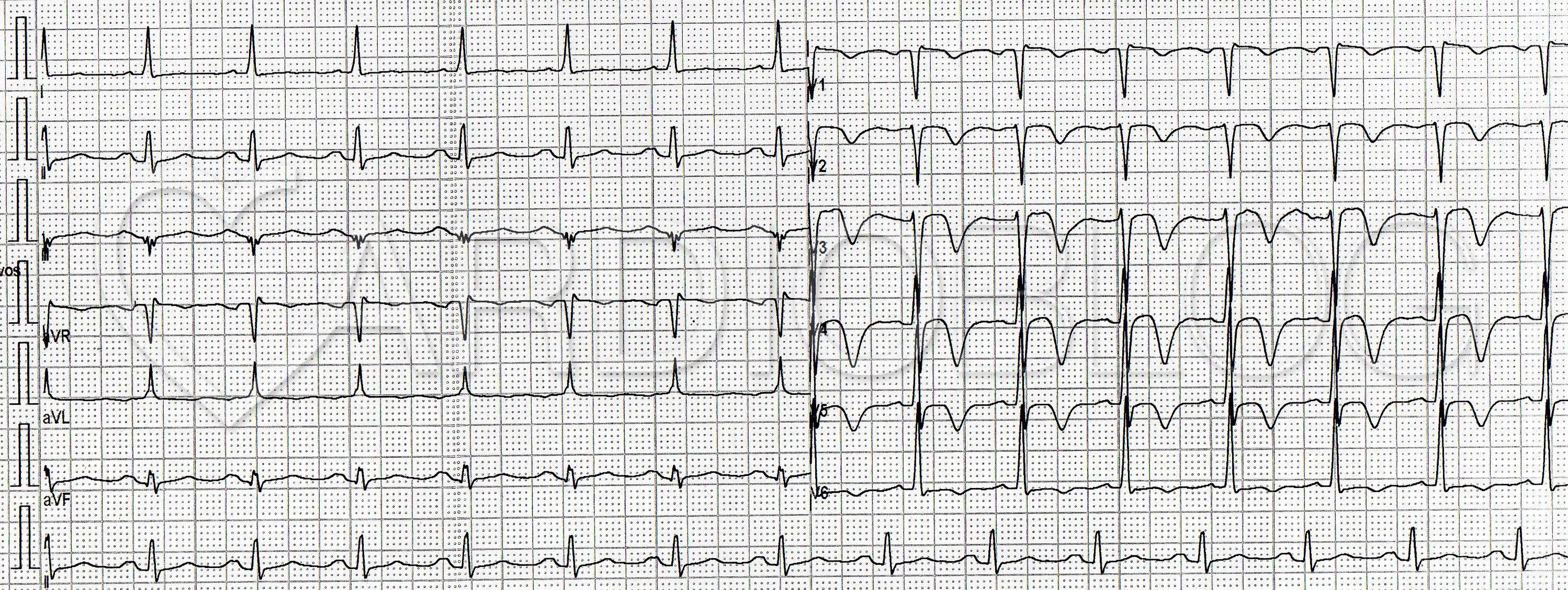 Hogyan készüljünk fel a szív EKG-jére?
