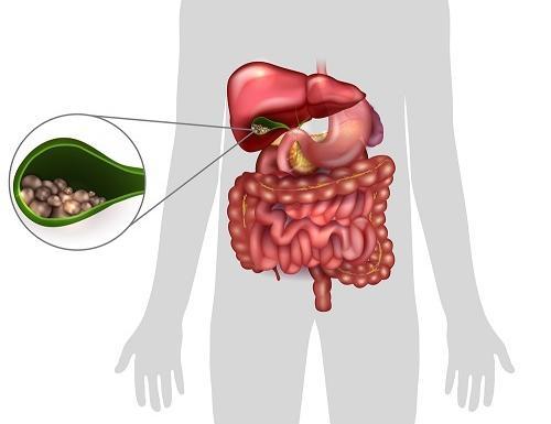 Akut epehólyag gyulladás & Kólika & Magas vérnyomás: okok – Symptoma