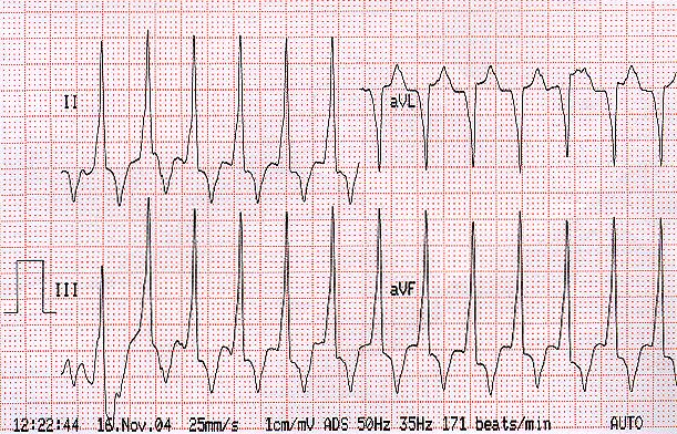 A szív sinus tachycardia: mi az, az okok és a kezelés - Aritmia November