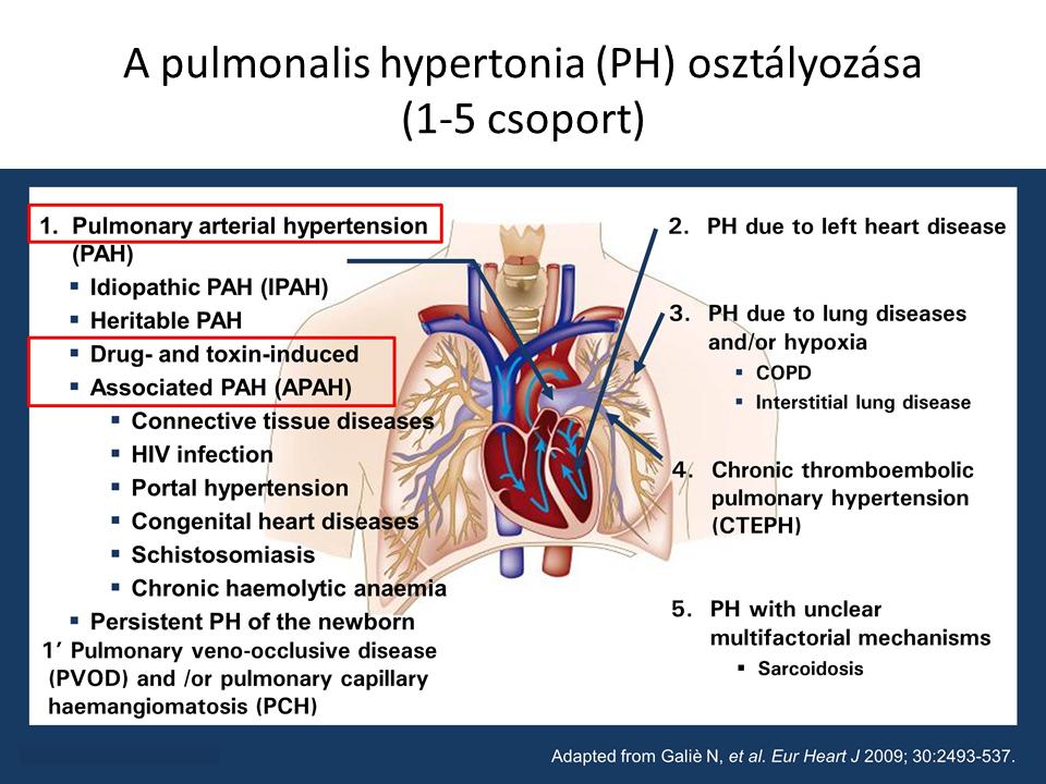 a pulmonalis hipertónia jelei)