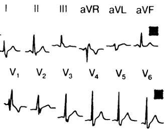 magas vérnyomás és a teljes bal köteg ág blokkolása)