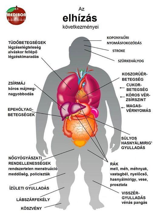 milyen gyakorlatokra van szükség a magas vérnyomáshoz amit nem szabad enni magas vérnyomás esetén