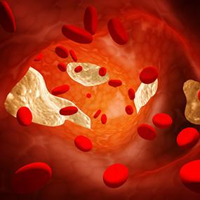 a magas vérnyomás és a stroke megelőzése