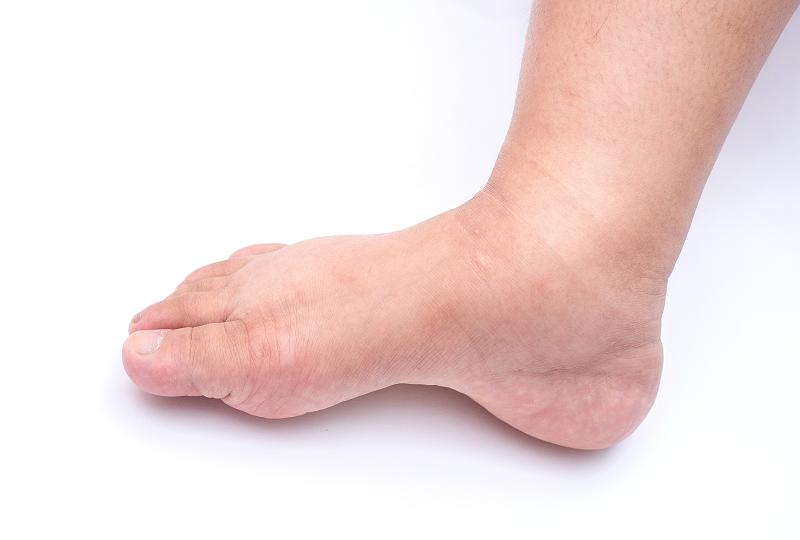 Folyton dagad a lába? Lehet, a vérnyomásával van gond