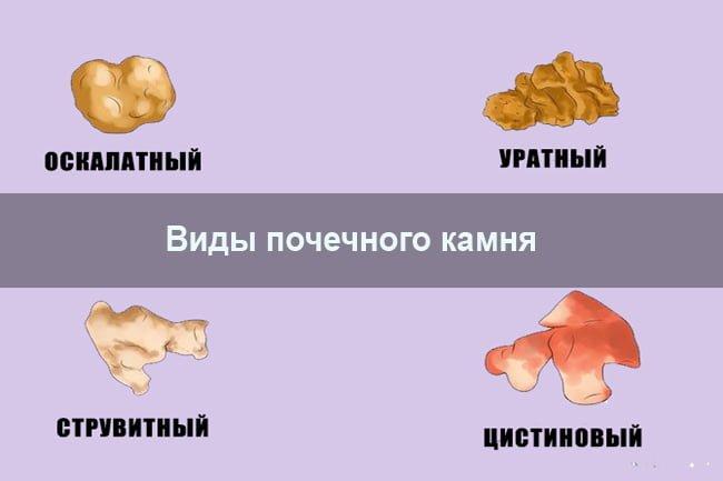 magas vérnyomás és urolithiasis