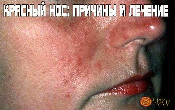 az arc vörössége magas vérnyomással)