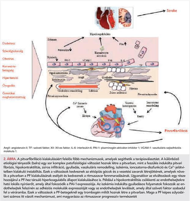 pitvari miokardiális hipertónia