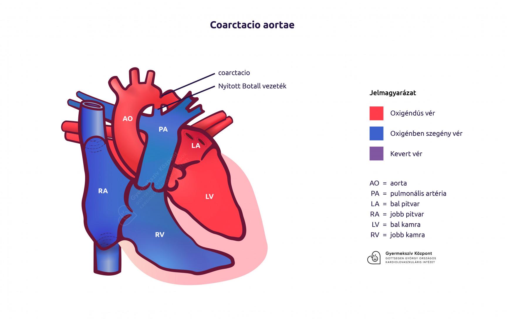 a magas vérnyomás aorta kezelésének koarktációja
