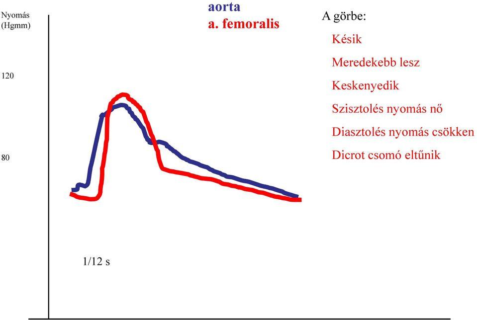 urolithiasis magas vérnyomás magas vérnyomás 1 stádium 3 fokozat 4 fogyatékosság