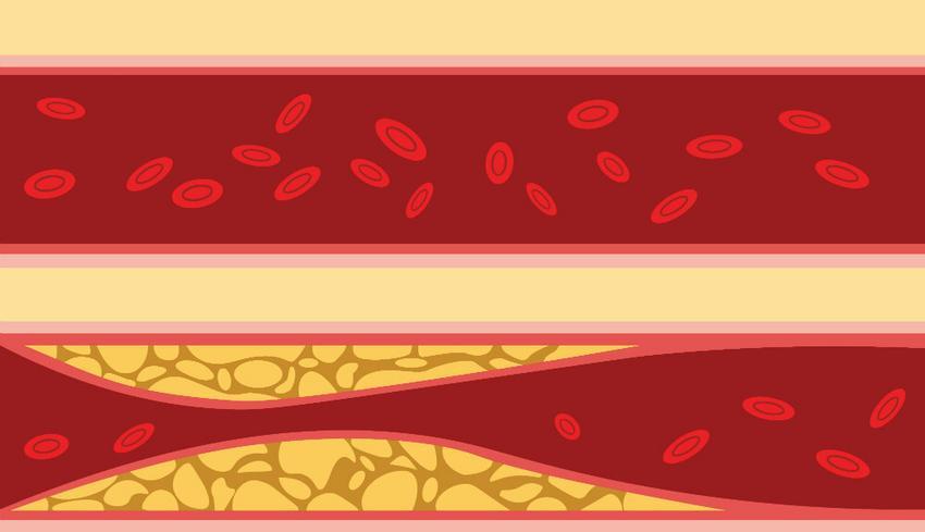Makroangiopátia, mi ez a betegség