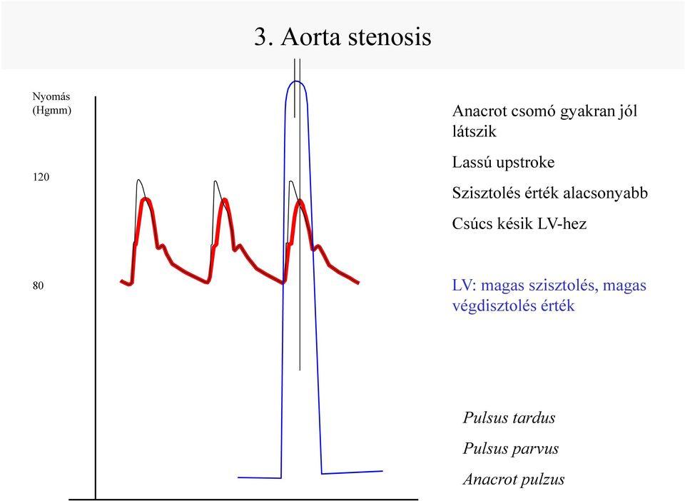 gyógyszerek elsődleges magas vérnyomás ellen magas vérnyomás ami stádiumot jelent