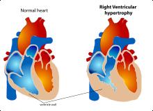 Hipertenzív szívbetegség - A nyomás