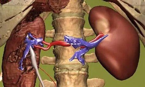 hagyományos orvoslás hogyan lehet megszabadulni a magas vérnyomástól)