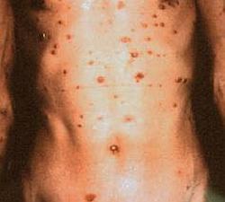 Szifilisz tünetei és kezelése