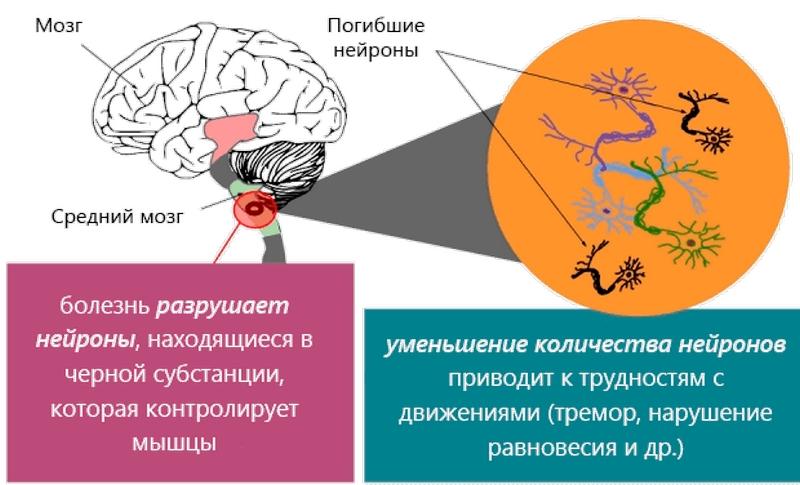 Traumás agykárosodás: jellemzők, következmények, kezelés és rehabilitáció