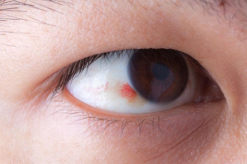 magas vérnyomású szem vérzése