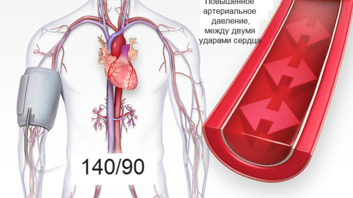 a magas vérnyomás és a hipotenzió masszázsának jellemzői