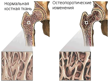 magas vérnyomás rusmedserver
