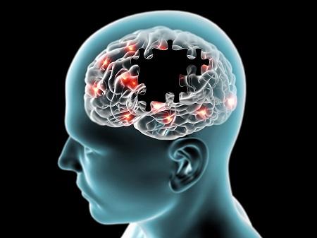 alzheimer-kór és magas vérnyomás