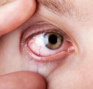 erek a magas vérnyomás szemében